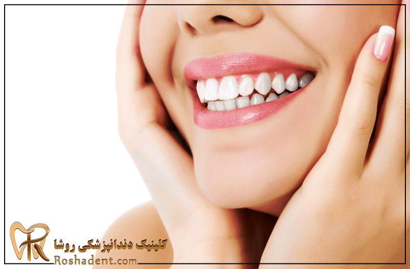 شرایط روکش دندان
